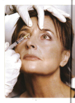 Freeze Frame_Botox article_Page_1
